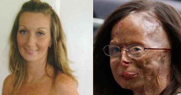 Fúria covarde: mulheres são alvo de violência no mundo inteiro ...