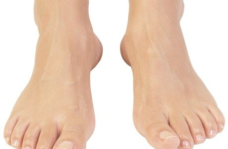 Amputação do pé amedronta diabéticos; entenda
