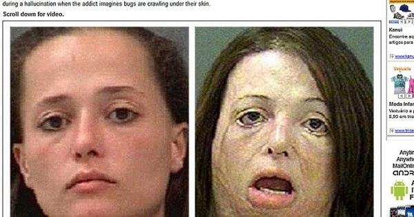 Droga devastadora transforma viciados em 'mortos-vivos' - Fotos ...