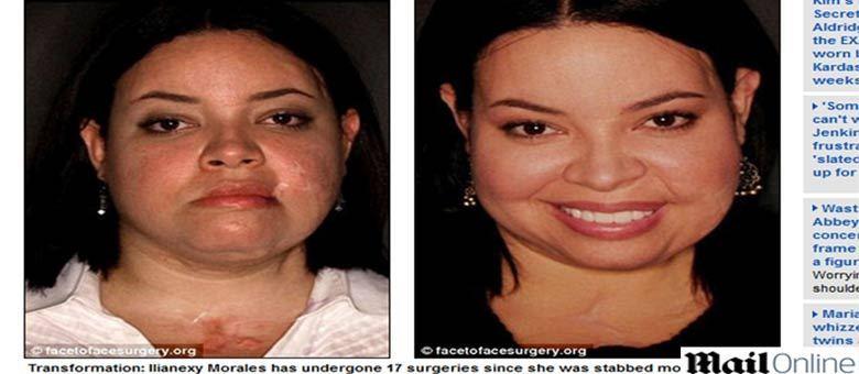 """Mulher esfaqueada cem vezes por ex-namorado recebe """"novo rosto"""" doado por médicos"""