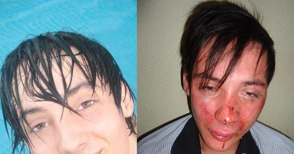 Jovem gay diz ter sido espancado por seguranças de boate em SC ...