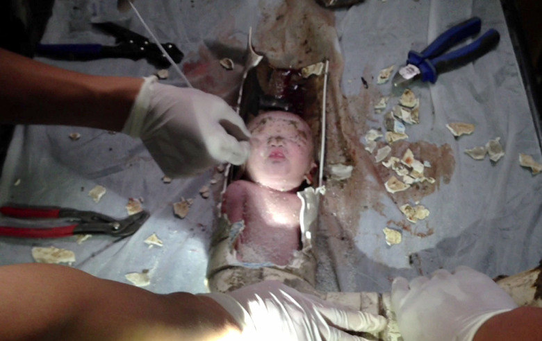 Uma vez lá, o cano de 10 cm de diâmetro foi cuidadosamente desmantelado por médicos e por bombeiros, a fim de que o bebê pudesse ser retirado. Segundo relatos, a criança agora está em condição estável. Há suspeita de que o bebê teria sido jogado na privada