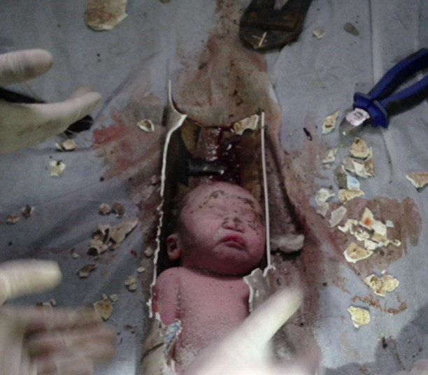 Segundo o correspondente da BBC em Pequim, Martin Patience, a polícia está tratando o caso como uma tentativa de homicídio e está em busca dos pais. A agência de notícias Associated Press informou que o bebê foi chamado de Bebê Número 59 — em homenagem ao número da incubadora do hospital para onde foi levado
