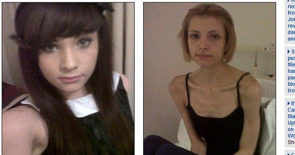 Casos chocantes: anorexia transforma vida de adolescentes em ...