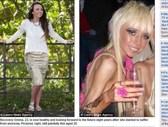 Emma O'Neil, de 22 anos, de Glasgow, Inglaterra, também quase morreu vítima da mesma doença. Ela chegou a pesar 20 kg e passou a adolescência dentro e fora do hospital. Muitas vezes, quando estava deitada na cama, ficava com hematomas pelo corpo. Saiba mais