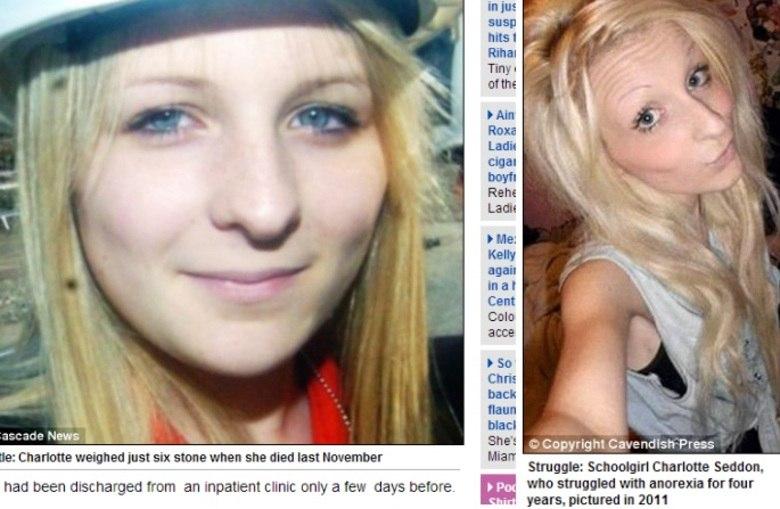 Charlotte Seddon foi mais uma vítima da anorexia. A jovem, de 17 anos de idade, escondeu de seus pais uma anorexia que a fez sofrer há quatro ano. Quando morreu, ela pesava 38 kg. Saiba mais