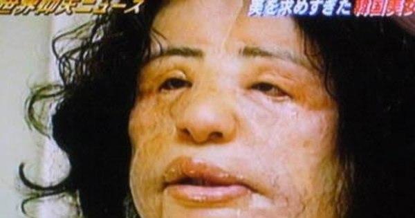 Conheça as piores cirurgias plásticas do mundo - Fotos - R7 Hora 7
