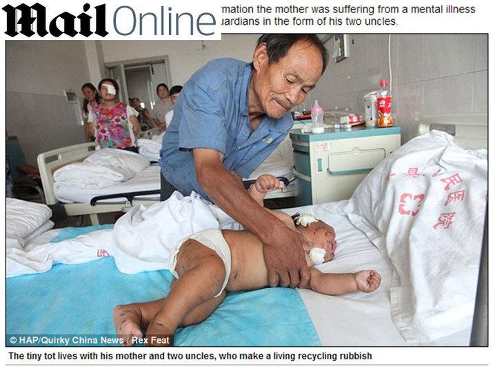 A mãe confessou que atacou Xiao porque ele a mordeu durante a amamentação. O bebê precisou receber cem pontos depois do incidente e ainda está se recuperando no hospital