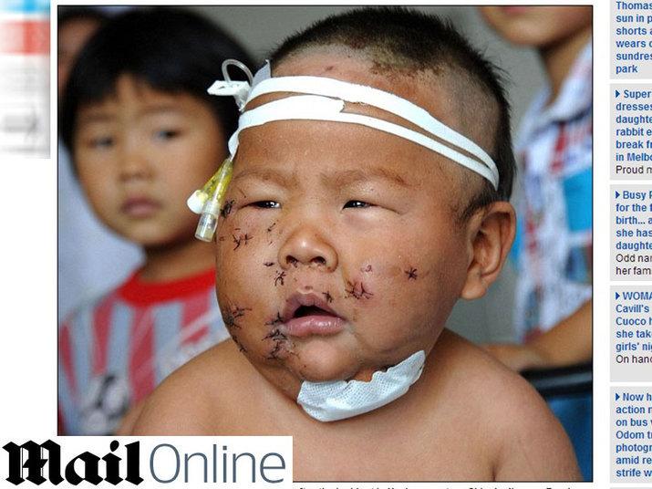O crime aconteceu em Zuzhou, na Província de Jiangsu.Xiao Bao mora com a mãe e dois tios, que trabalham coletando lixo para reciclagem. Foi um dos tios quem descobriu o bebê ferido, deitado em uma poça de sangue, no quintal de casa, e o levou ao hospital.As informações são do tabloide britânico Daily Mail