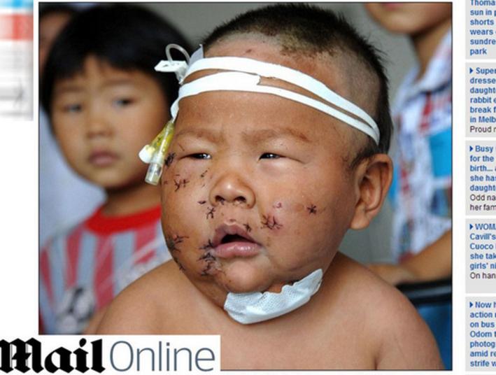 Xiao Bao (foto) mora com a mãe e dois tios, que trabalham coletando lixo para reciclagem. Foi um dos tios quem descobriu o bebê ferido, deitado em uma poça de sangue, no quintal de casa, e o levou ao hospital.A mãe confessou que atacou Xiao porque ele a mordeu durante a amamentação.O bebê precisou receber cem pontos depois do incidente e ainda está se recuperando no hospital