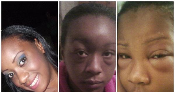 Reação alérgica a tintura de cabelo deforma rosto de jovem - Fotos ...