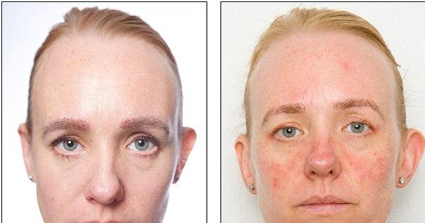 dormir com maquiagem faz a pele envelhecer 10 anos. Compare