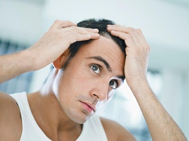 Não muito comum, a alopecia areata — condição autoimune que causa uma reação inflamatória no folículo piloso — leva à perda completa do cabelo em algumas áreas focais ou em todo o couro cabeludo. Ela é provocada quando a pessoa tem uma predisposição genética à doença ou passa por algum estresse emocional extremamente forte. De acordo com a especialista, essa condição não tem cura. — O paciente que adere ao tratamento à base de medicamentos consegue controlar a queda do cabelo. Mas, a doença pode reaparecer a cada um ou dois anos