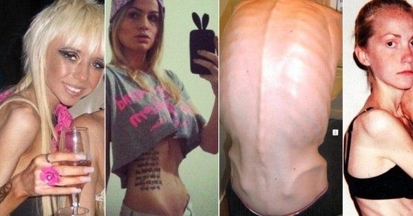 Casos chocam: anorexia faz jovens viverem pesadelo e pode levar ...