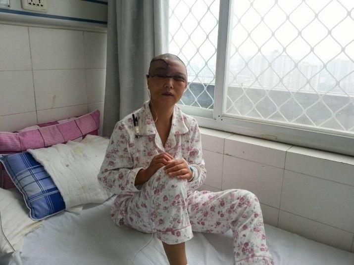 """Uma mulher de 45 anos perdeu todo o cabelo e o couro cabeludo após uma máquina """"engolir"""" os fios durante seu trabalho, em Hanzhong, Província de Shaanxi, noroeste da China. O acidente aconteceu no fim do mês de agosto"""