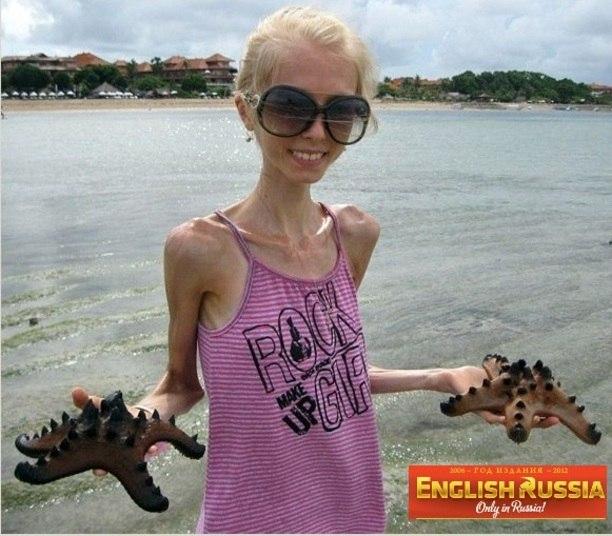 """Aos 20 anos de idade, a russa Kseniya Bubenko é mais uma adolescente que sofre de anorexia.   De acordo com o jornal russo English Russia, a jovem começou a fazer uma dieta chamada de """"pobeda"""", que significa vitória e, perdeu muito peso. Hoje, sua aparência física é assustadora"""