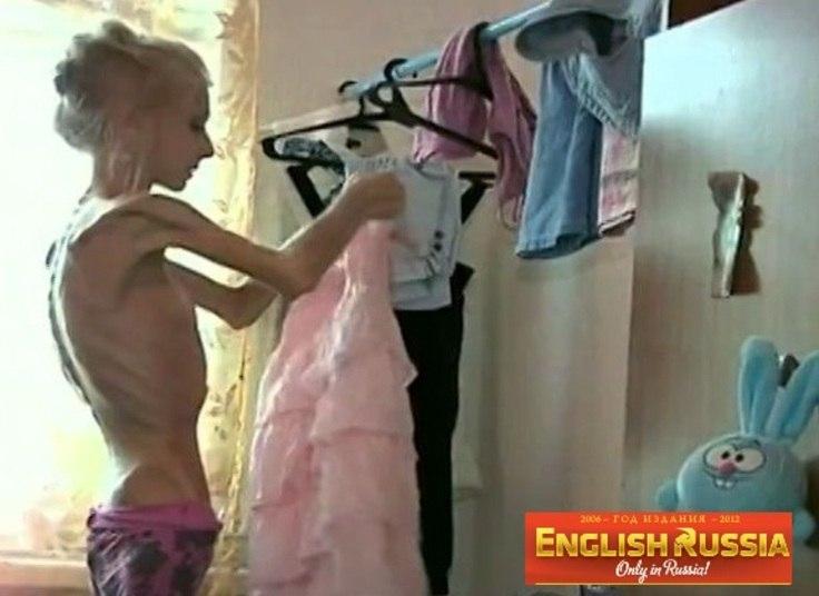 O pensamento comum de quem sofre anorexia é o de que quanto mais peso perder, melhor será