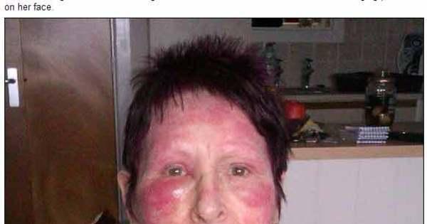 Mulher fica com o rosto deformado por reação alérgica depois de ...
