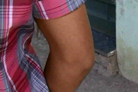 Policiais presos torturaram jovem com saco plástico, agulhas e panela quente