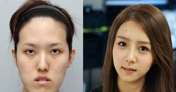 Coreanos mudam completamente o rosto em plásticas absurdas e ...