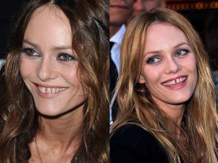 A atriz e cantora francesa Vanessa Paradis precisa ir a um dentista com urgência. A artista também tem os dentes da frente separados, além de um pouco amarelados