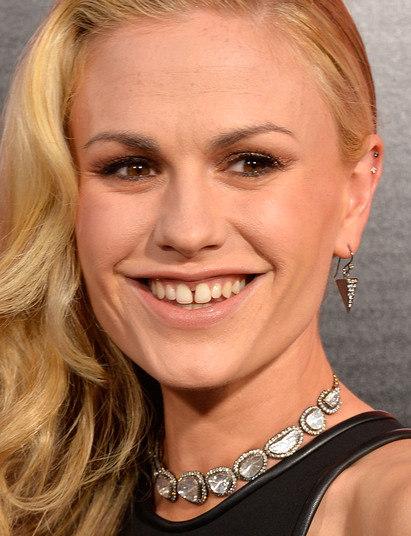 Anna Paquin, de X-Men e da sérieTrue Blood, tem uma leve separação entre os dois dentes da frente e uma pele pra lá de imperfeita. Nem parece que é uma das atrizes mais famosas entre as séries de filmes americanos