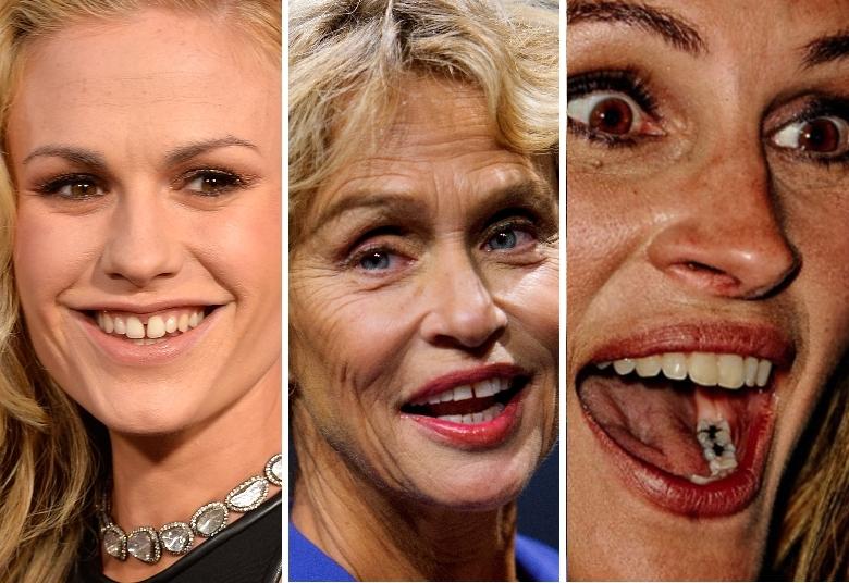Se você acha que a vida dos atores de Hollywood é fácil, está enganado! OR7preparou uma galeria de fotos com os cliques que menos favorecem os artistas. Isto porque eles aparecem com imperfeições, principalmente nos dentes, que até assustam o público. Espie!