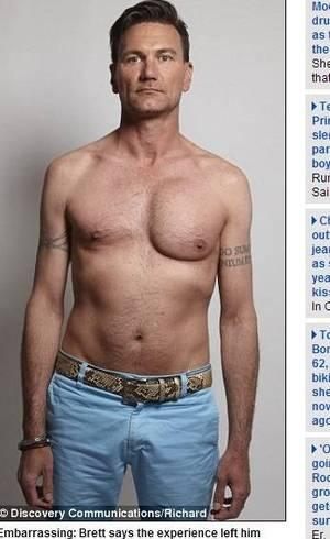 Quem fez a cirurgia plástica de um peito