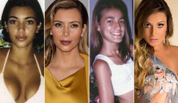Veja o antes e o depois das famosas que fizeram plásticas