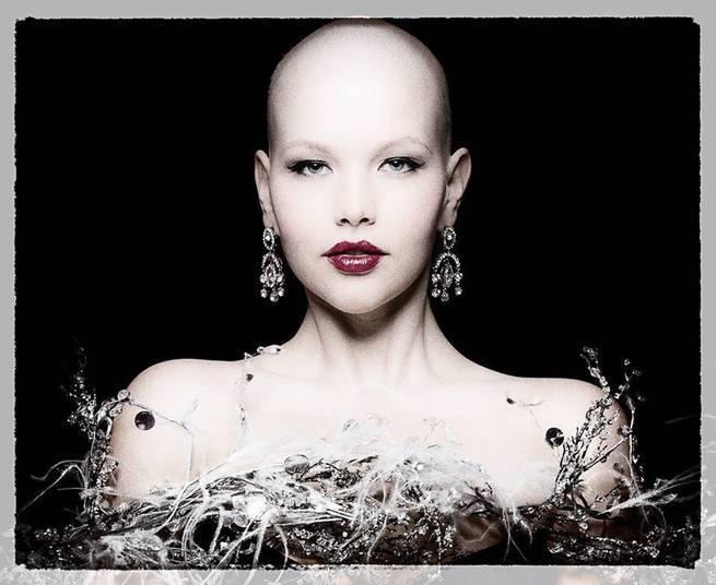 Careca Devido 224 Quimioterapia Modelo Plus Size Estrela