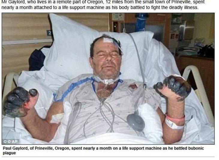 O aposentado Paul Gaylord, 61 anos, contraiu uma doença rara, conhecida como peste bubônica (peste negra), após ser mordido por um gato de rua, em Oregon, nos Estados Unidos. As informações são do site Daily Mail