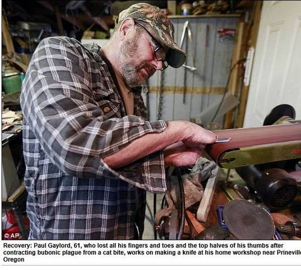 Por causa da peste, o homem teve parte dos dedos das mãos amputadas. Soldador aposentado, agora ele passa a maior parte de seu tempo livre fazendo facas na garagem da sua casa
