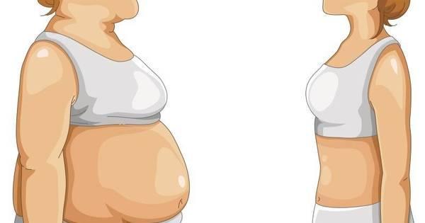 Já pensou em perder 30 kg em 3 meses? Balão gástrico é opção ...