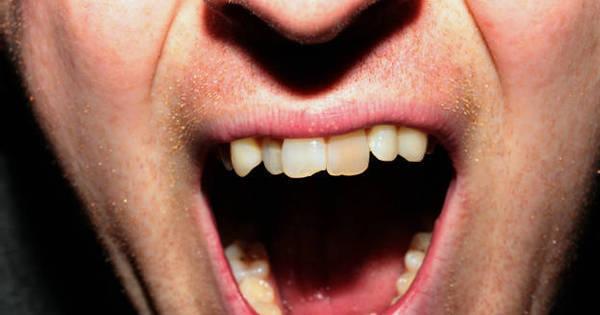 Dor de cabeça, nos olhos e cansaço no maxilar podem ser sinais de ...