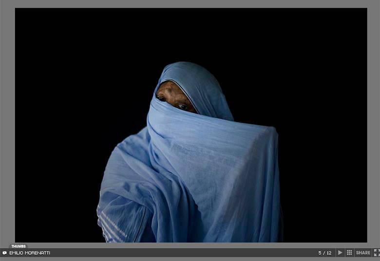 Bushra Shari foi queimada pelo marido quando tentou se divorciar