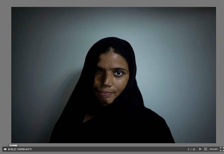 Munira Assef foi queimada com ácido aos 18 anos, por um rapaz com quem não quis se casar