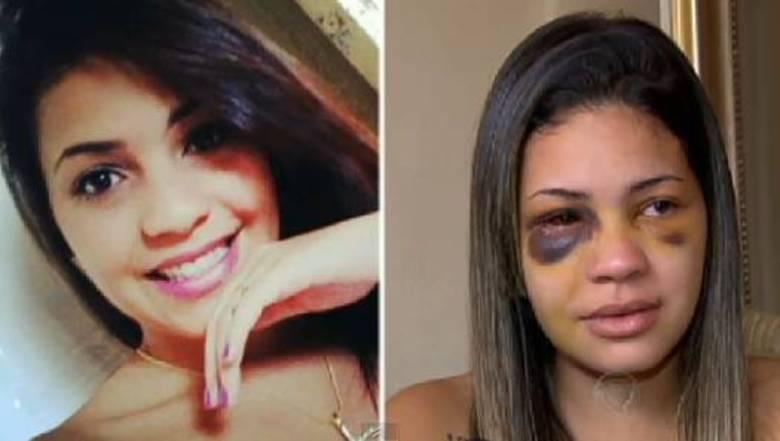 Letícia Amaral Ribeiro, de 22 anos, e o namorado Rafael, foram agredidos após pedir passagem para o motorista de um carro que bloqueava o acesso de uma rua do centro comercial de Alphaville. Letícia teve traumatismo facial e o maxilar quebrado