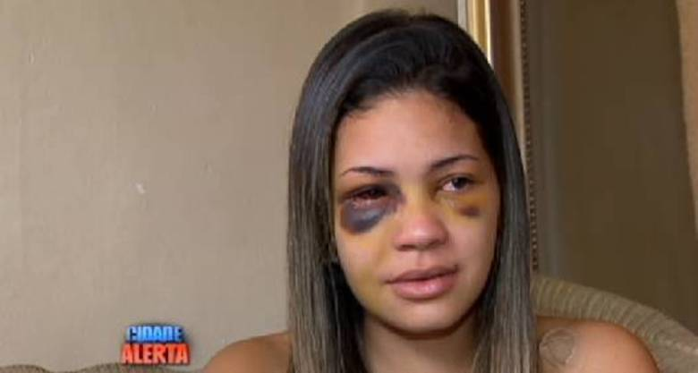 Ela também conta que o bebê não tem dificuldades de reconhecê-la devido aos ferimentos no rosto