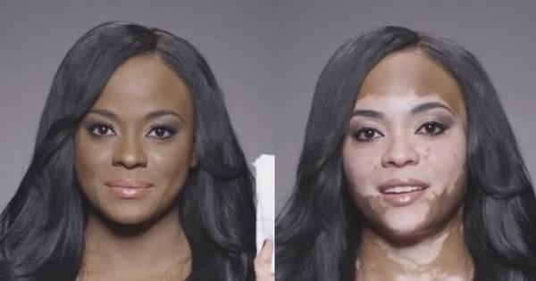 Mulher com vitiligo mostra antes e depois com maquiagem e manda ...