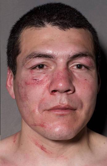 E ele não se deu bem na sua luta, o resultado foi: um nariz sangrando, olho inchado e uma aparência nada boa