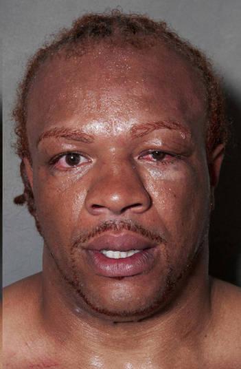 Outro que deve ter apanhado muito na luta e recebido vários golpes na olho. Ele não esta vendo nem a câmera do fotógrafo