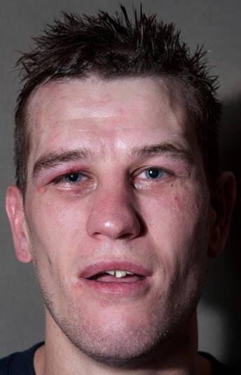 A luta foi tão boa que deixou o lutador de cabelo em pé, mas o que impressiona mesmo é ver como o rosto dele ficou todo desfigurado