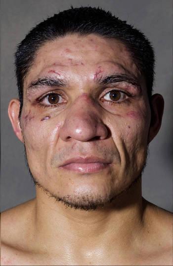 A foto depois da luta não foi muito boa, pelo menos para o lutador. Vários cortes no rosto