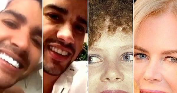 Antes e depois! Veja fotos dos famosos que fizeram clareamento ...