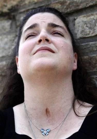 Sandy Wilson também contraiu a doença, em 2010, e teve de fazer uma cirurgia às pressas