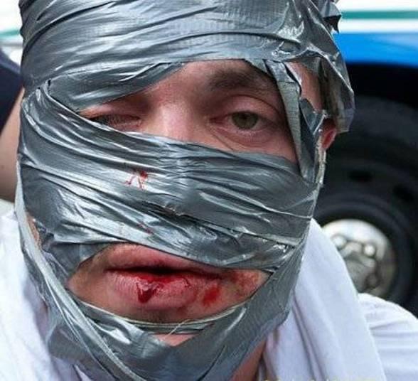 No Kentucky (EUA), Kasey G. Kazee roubou uma loja com a cabeça   embrulhada em fita silver tape. Kazee foi perseguido pelo dono da loja e   acabou detido até que a polícia chegasse e depilasse seu rosto todo,   arrancando pedaço por pedaço da fita adesiva