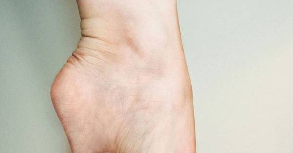 Moda tem limite? Mulheres fazem lipoaspiração no dedão para os ...