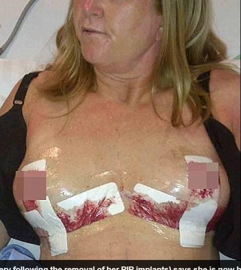 Aumentar um peito durante 40 anos