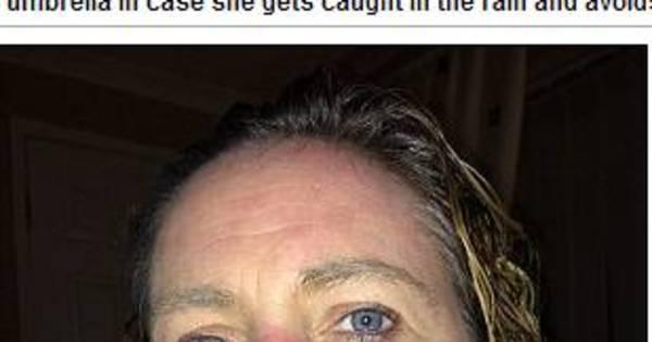Alérgica a água, mulher pode morrer se chorar ou suar - Fotos - R7 ...