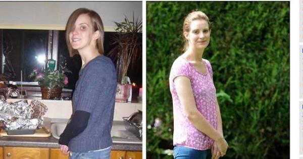 À beira da morte, jovem com anorexia dá a volta por cima e admite ...